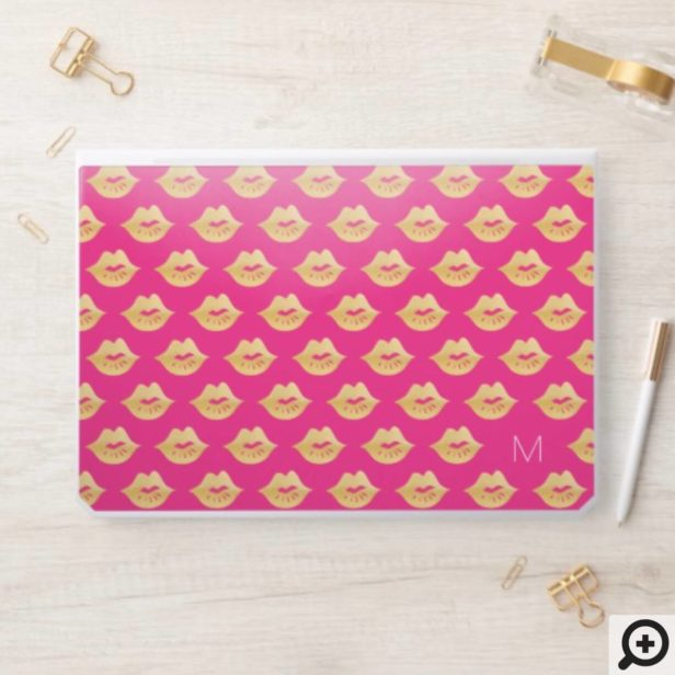 Stylish Trendy Gold & Pink Kiss Lip Pattern HP Laptop Skin
